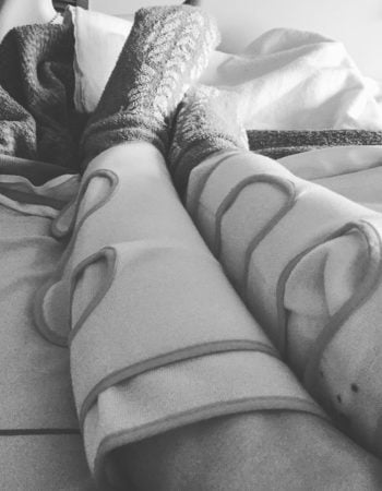 A photo of legs wrapped in massage cuffs.